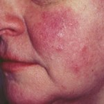 Guidelines in Choosing the Right Moisturizers for Rosacea - Rosacea Creams Exposed