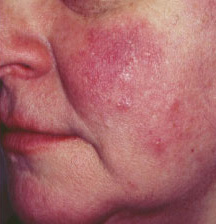 Rosacea can affect anyone