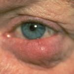 ocular rosacea cure