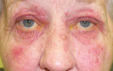 Ocular Rosacea - Information, Symptoms & Treatment
