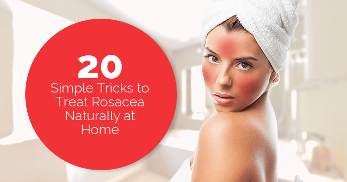 20 Simple Tricks to Treat Rosacea Naturally at Home